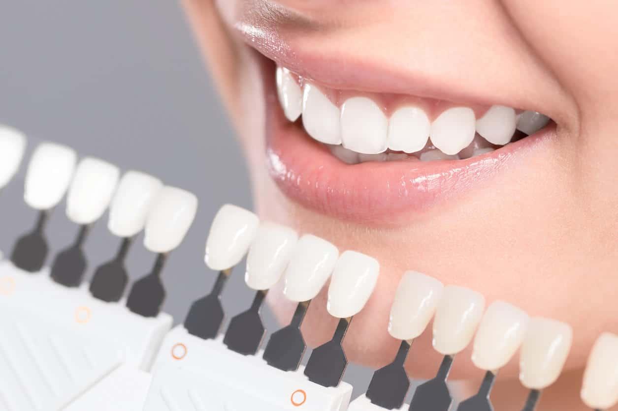 Facettes dentaires Tunisie tarif