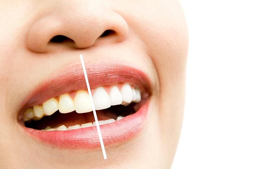 Blanchiment dentaire Tunisie