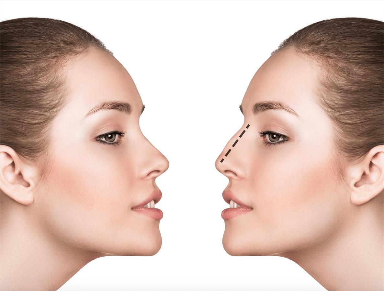 rhinoplastie Tunisie-chirurgie du nez