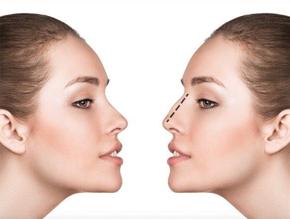 chirurgie du nez tunisie