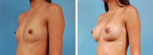 Augmentation mammaire par prothèses 300cc tunisie