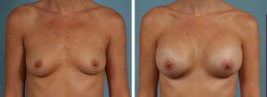 Augmentation mammaire par prothèses 350cc tunisie