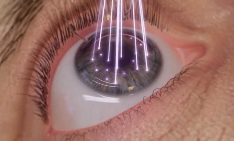Lasik en Tunisie chirurgie des yeux au laser