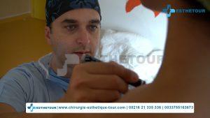 Dr. Kallel Moez chirurgien esthétique en Tunisie