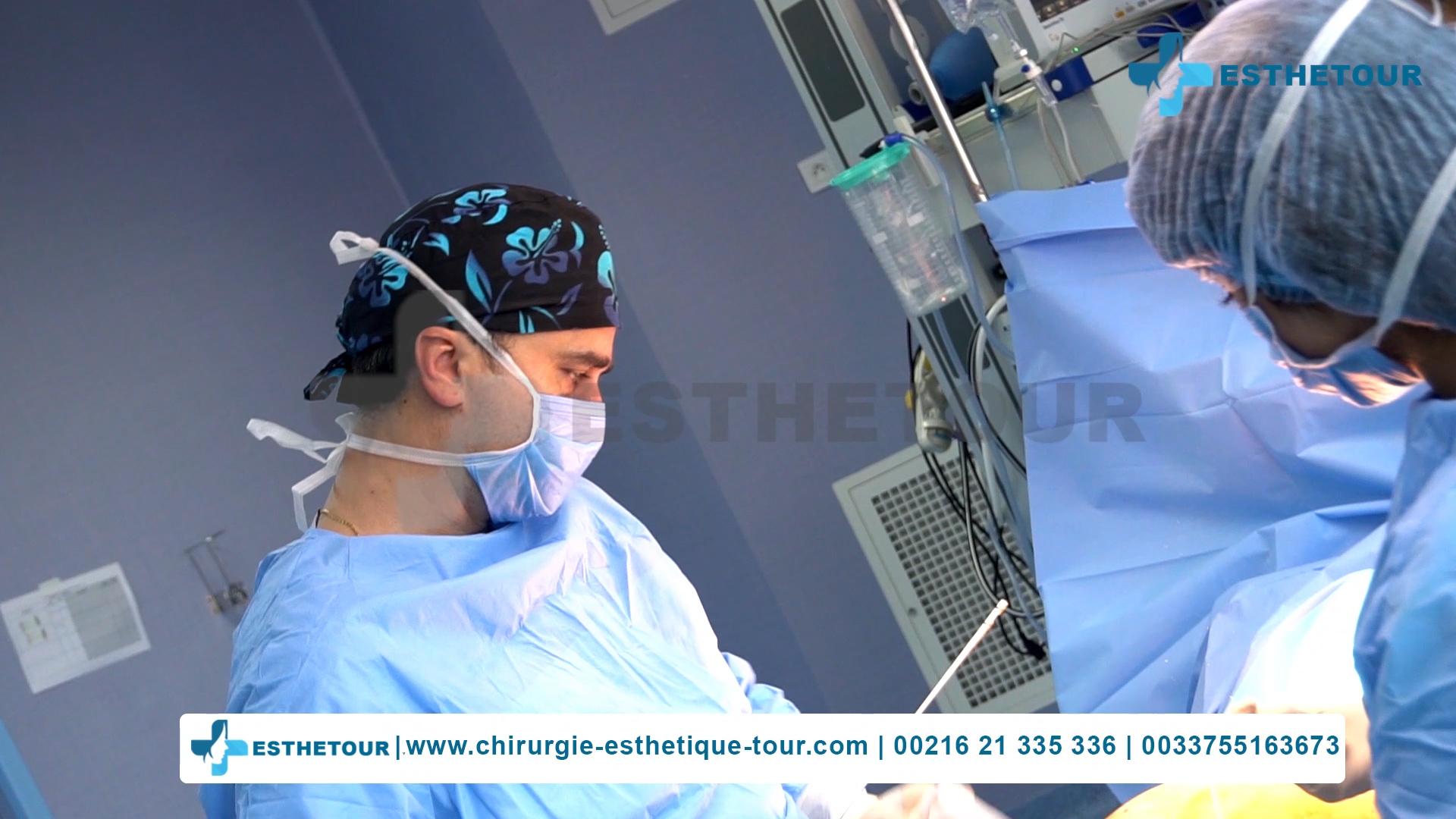 Dr Kallel Moez chirurgien esthétique