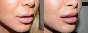 Lip lift lifting des lèvres tunisie photos