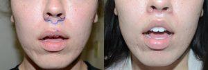 chirurgie lèvre supérieure tunisie prix