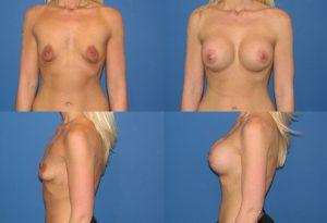 Chirurgie réduction mamelon tunisie
