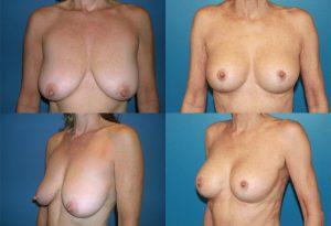 Chirurgie esthetique réduction mamelon avant après